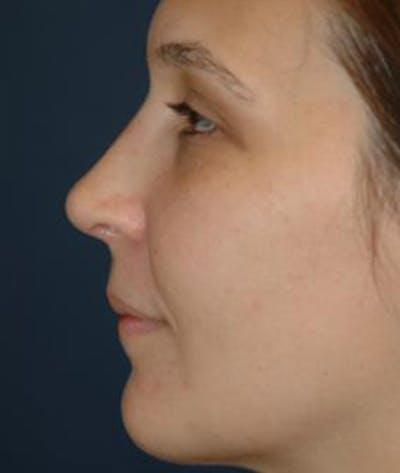Rhinoplasty Gallery - Patient 4861582 - Image 6