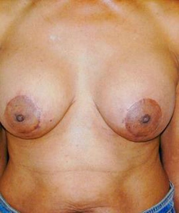 Breast Lift Gallery - Patient 4861583 - Image 2
