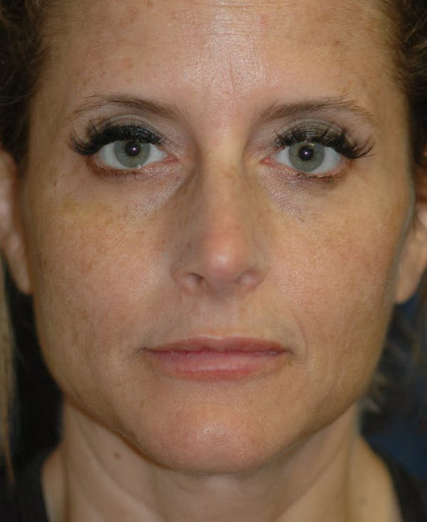 Facelift Gallery - Patient 4861586 - Image 1
