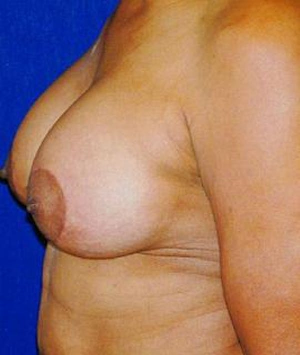 Breast Lift Gallery - Patient 4861583 - Image 4