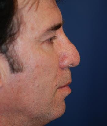 Rhinoplasty Gallery - Patient 4861585 - Image 1