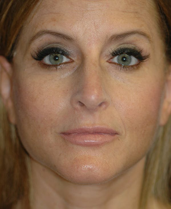 Facelift Gallery - Patient 4861586 - Image 2
