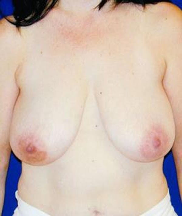 Breast Lift Gallery - Patient 4861584 - Image 1