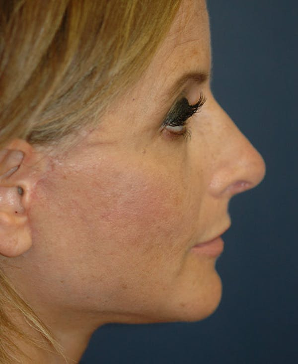 Facelift Gallery - Patient 4861586 - Image 4
