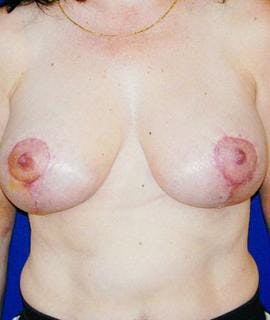 Breast Lift Gallery - Patient 4861584 - Image 2