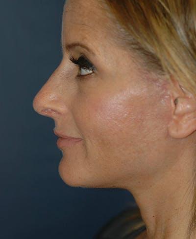 Facelift Gallery - Patient 4861586 - Image 6