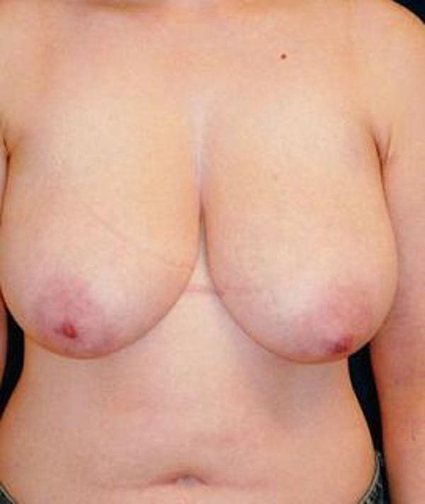 Breast Lift Gallery - Patient 4861588 - Image 1