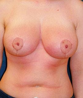 Before & After Houston Breast Lift
