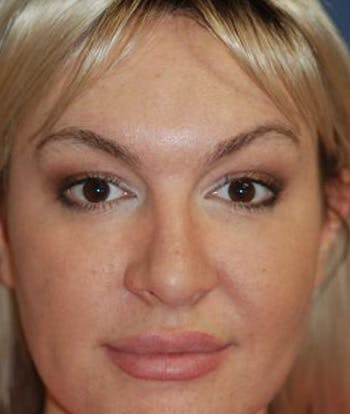 Rhinoplasty Gallery - Patient 4861589 - Image 2