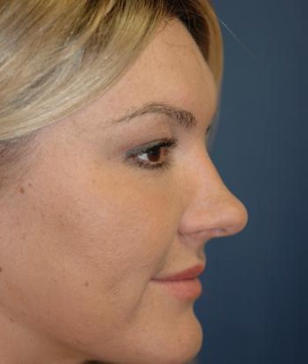 Rhinoplasty Gallery - Patient 4861589 - Image 3