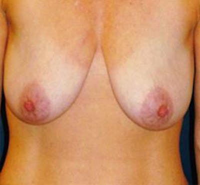Breast Lift Gallery - Patient 4861590 - Image 1