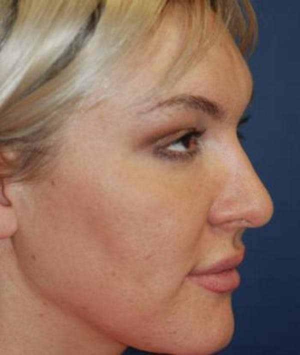 Rhinoplasty Gallery - Patient 4861589 - Image 4