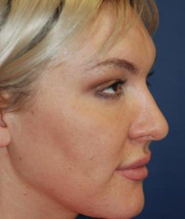 Rhinoplasty Gallery - Patient 4861589 - Image 4