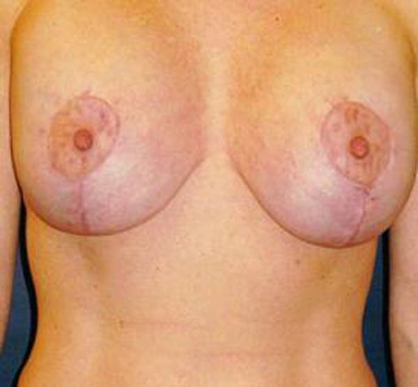 Houston Breast Lift Results