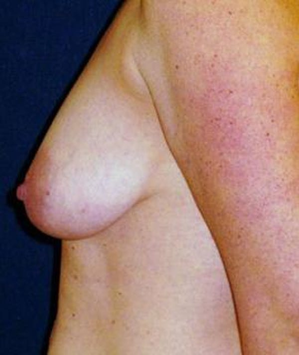 Breast Lift Gallery - Patient 4861592 - Image 1