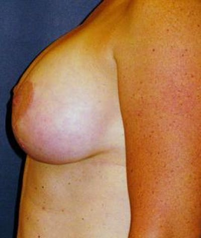 Breast Lift Gallery - Patient 4861592 - Image 2