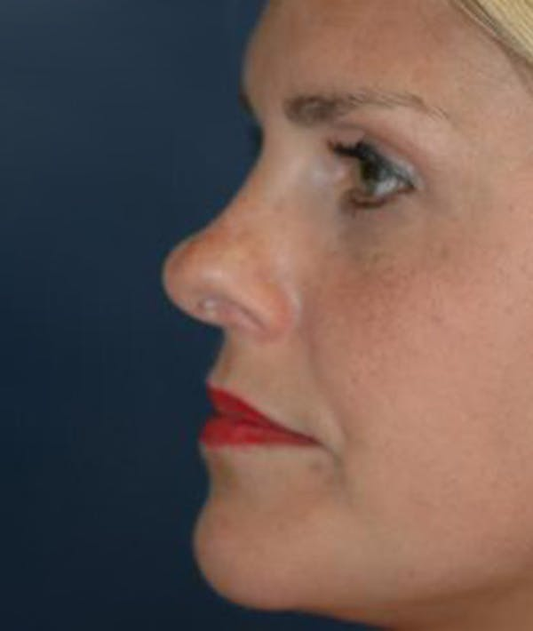 Rhinoplasty Gallery - Patient 4861595 - Image 3
