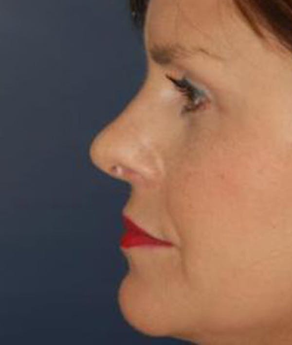 Rhinoplasty Gallery - Patient 4861595 - Image 4