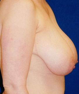 Breast Lift Gallery - Patient 4861594 - Image 1