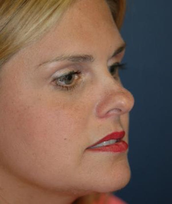Rhinoplasty Gallery - Patient 4861595 - Image 5