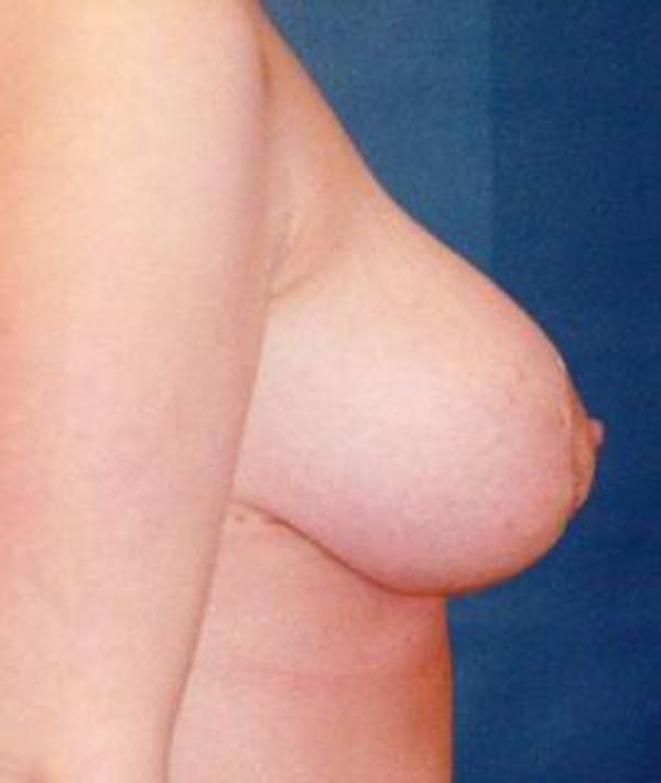 Breast Lift Gallery - Patient 4861594 - Image 2