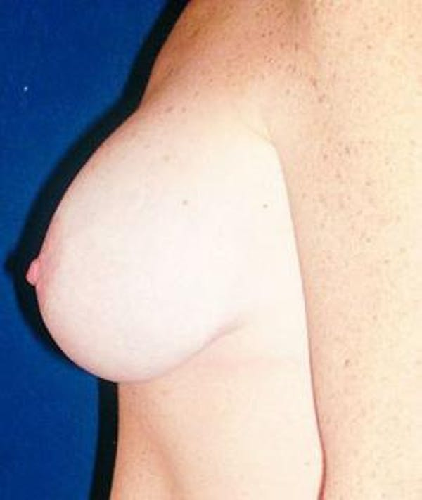 Breast Lift Gallery - Patient 4861603 - Image 2