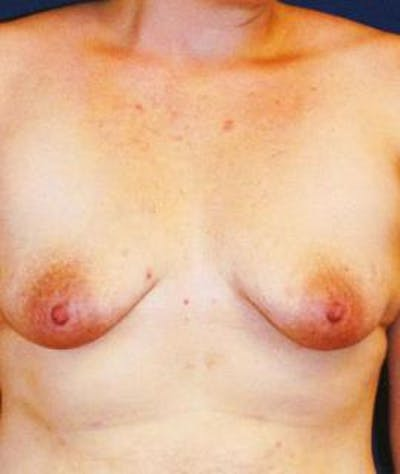 Breast Lift Gallery - Patient 4861606 - Image 1