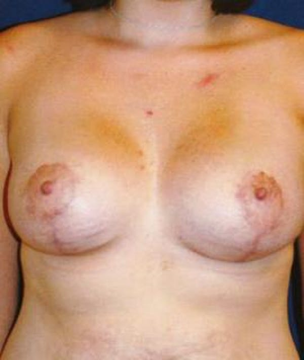 Breast Lift Gallery - Patient 4861606 - Image 2