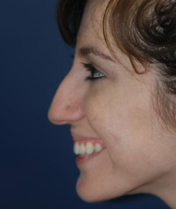 Rhinoplasty Gallery - Patient 4861609 - Image 1