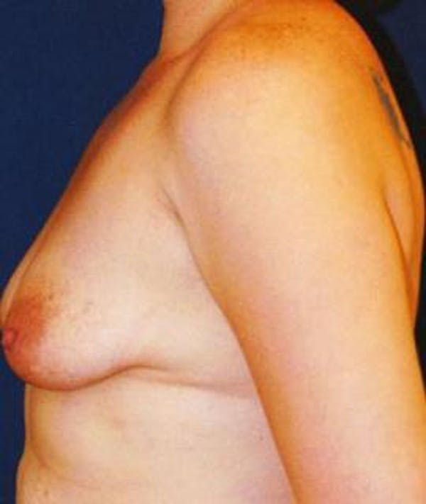 Breast Lift Gallery - Patient 4861606 - Image 3