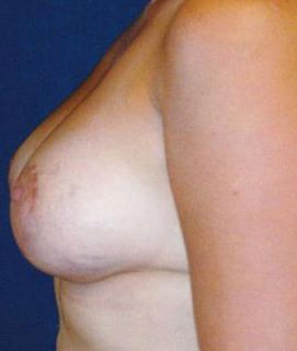 Breast Lift Gallery - Patient 4861606 - Image 4