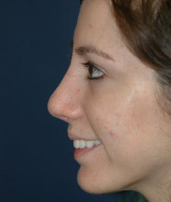 Rhinoplasty Gallery - Patient 4861609 - Image 2