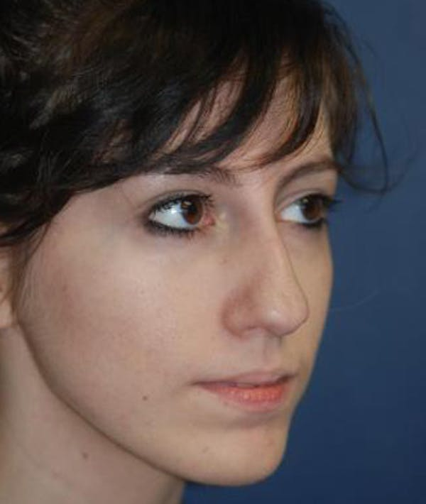 Rhinoplasty Gallery - Patient 4861609 - Image 3