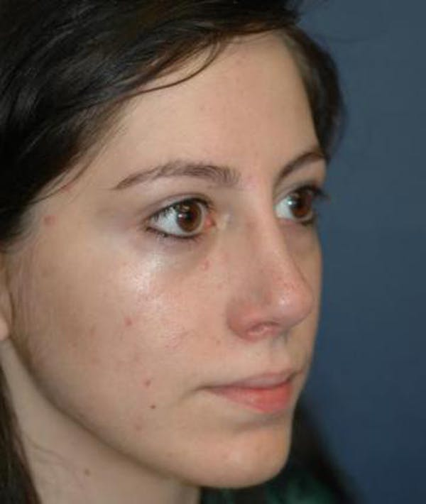 Rhinoplasty Gallery - Patient 4861609 - Image 4