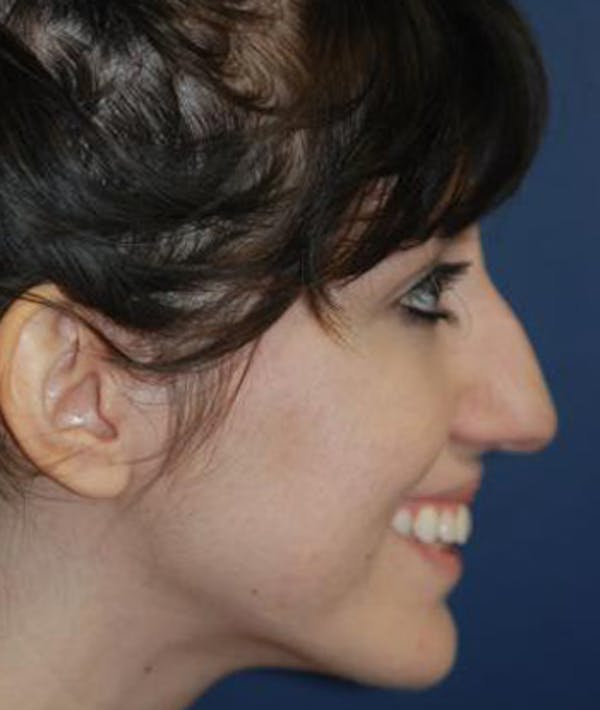 Rhinoplasty Gallery - Patient 4861609 - Image 5