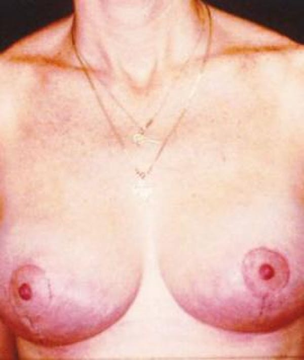 Breast Lift Gallery - Patient 4861608 - Image 2