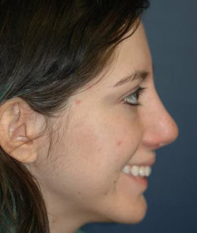Rhinoplasty Gallery - Patient 4861609 - Image 6