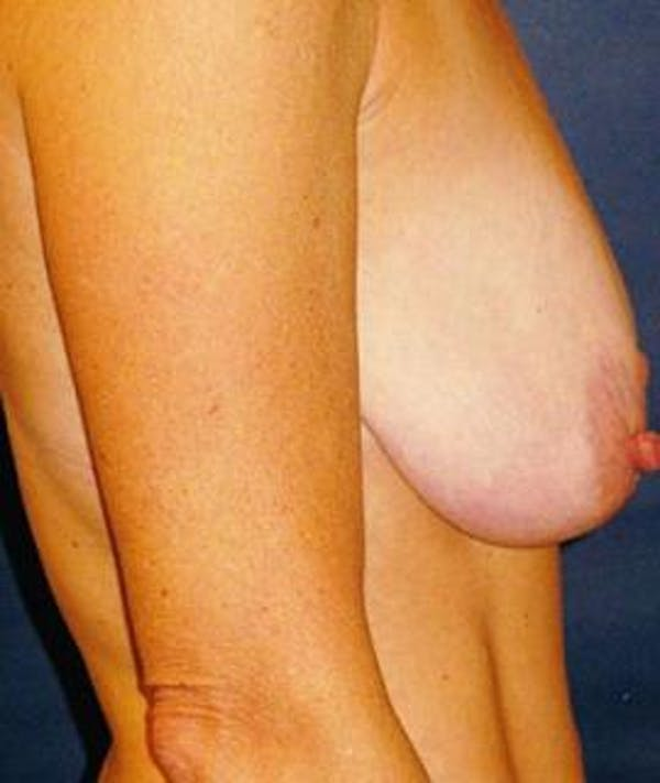 Breast Lift Gallery - Patient 4861610 - Image 1