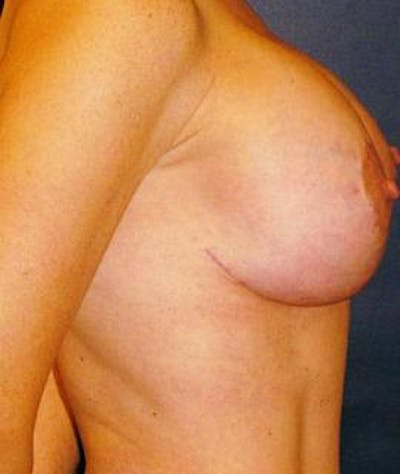 Breast Lift Gallery - Patient 4861610 - Image 2