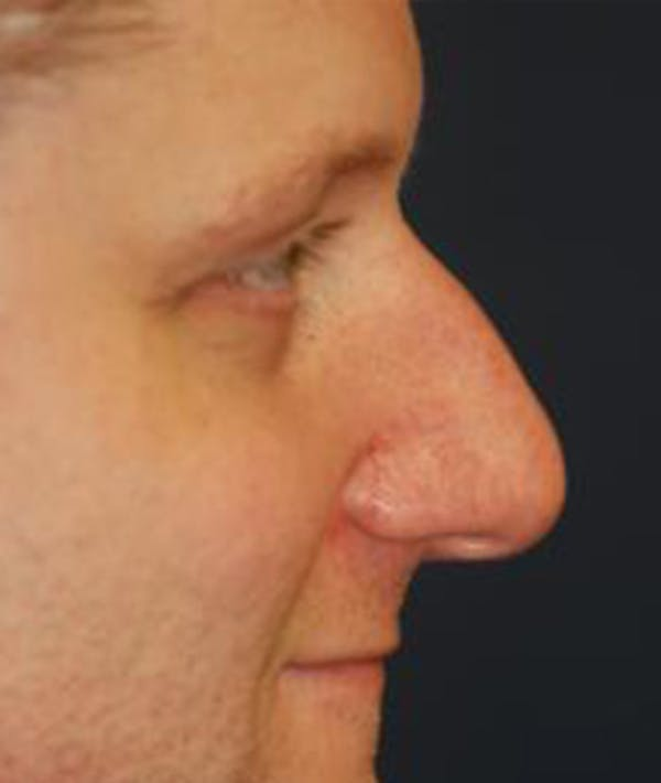 Rhinoplasty Gallery - Patient 4861611 - Image 3