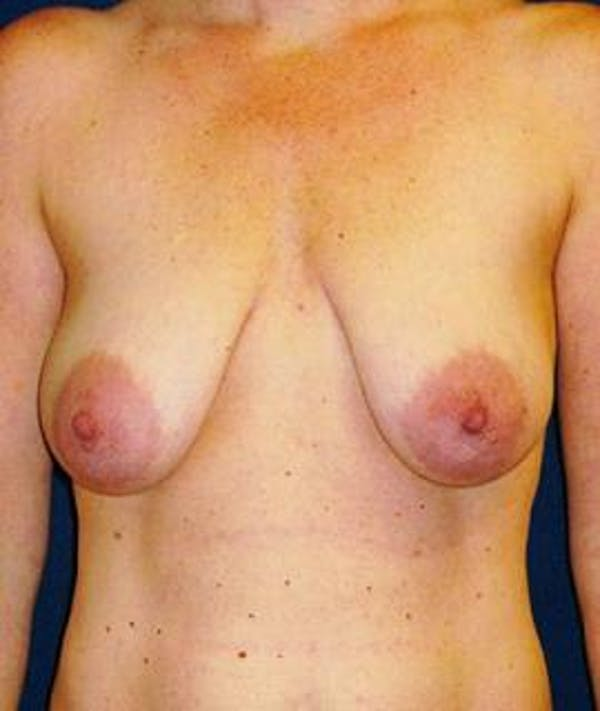 Breast Lift Gallery - Patient 4861612 - Image 1