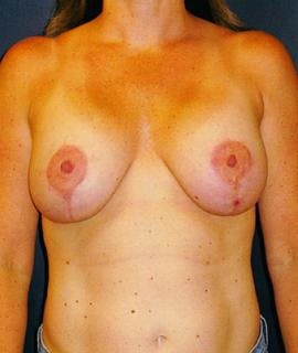 Breast Lift Gallery - Patient 4861612 - Image 2