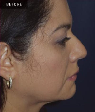 Rhinoplasty Gallery - Patient 4861614 - Image 18