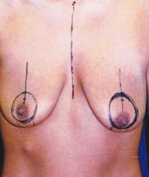 Breast Lift Gallery - Patient 4861613 - Image 1
