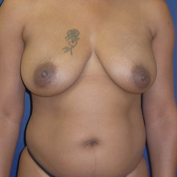 Breast Lift Gallery - Patient 4861616 - Image 1