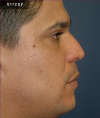 Rhinoplasty Gallery - Patient 4861615 - Image 1