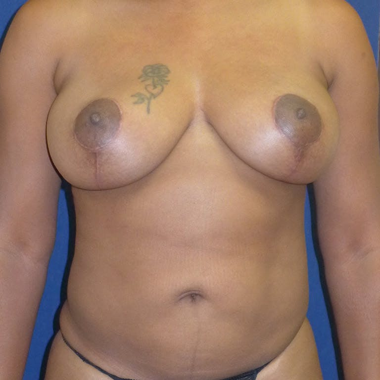 Breast Lift Gallery - Patient 4861616 - Image 2