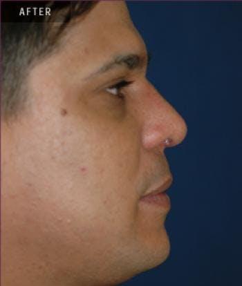 Rhinoplasty Gallery - Patient 4861615 - Image 2