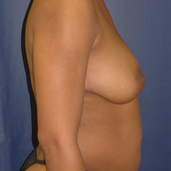 Breast Lift Gallery - Patient 4861616 - Image 3