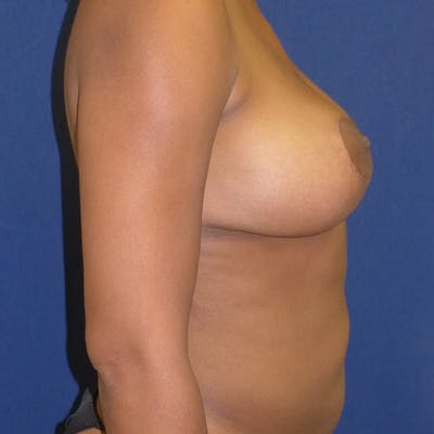 Breast Lift Gallery - Patient 4861616 - Image 4